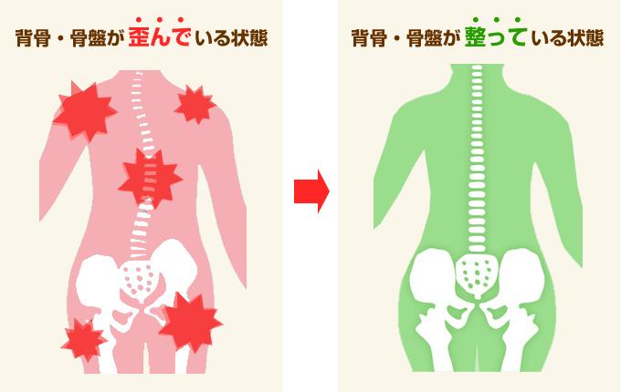 骨盤が歪んでいる状態・正常な状態の図